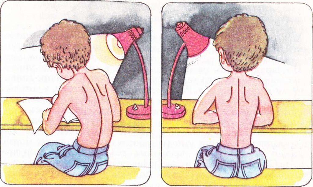 Детский сколиоз и его профилактика