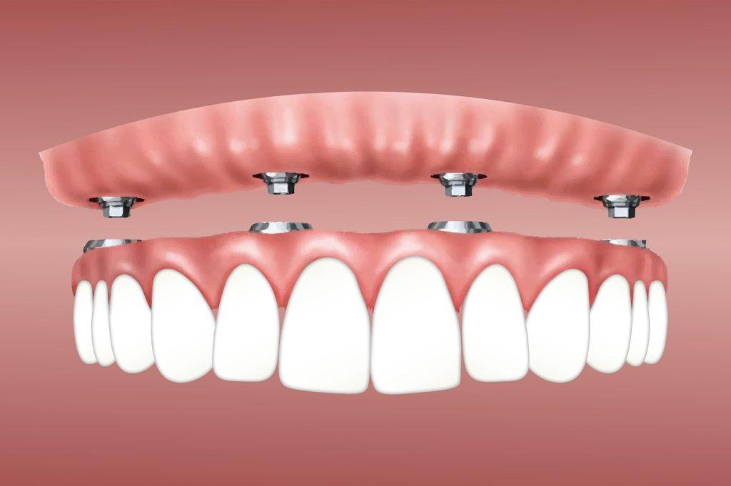 Плюсы имплантации зубов